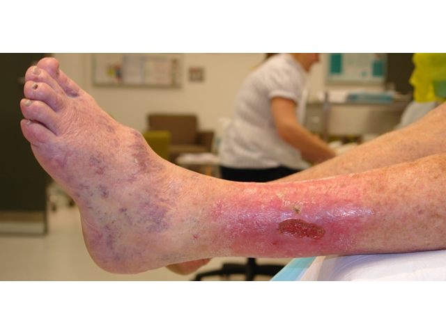 Image result for LOW EXUDATE WOUNDS